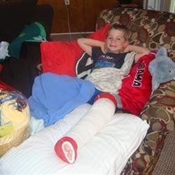 THE Broken Leg!