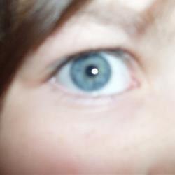 A Eye
